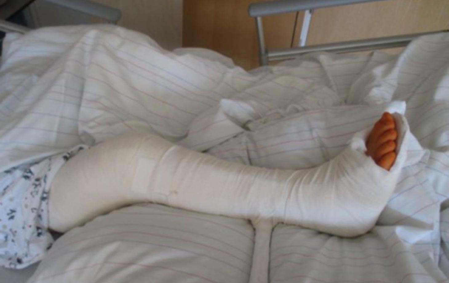 Сломала ногу девушка фото